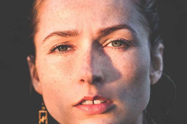 Jak poradzić sobie z przebarwieniami na twarzy?